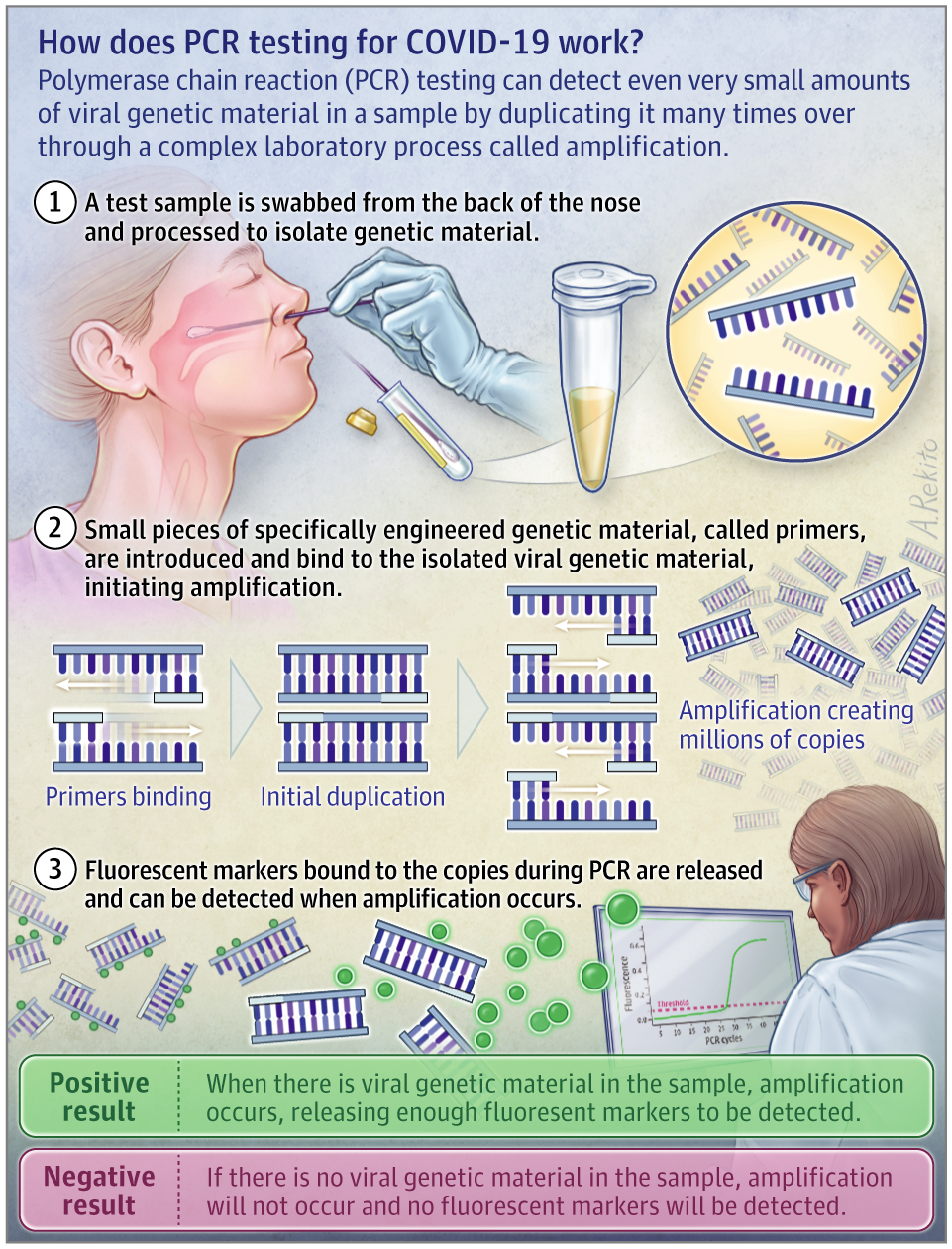PCR-Test-for-COVID-19-Infection.png