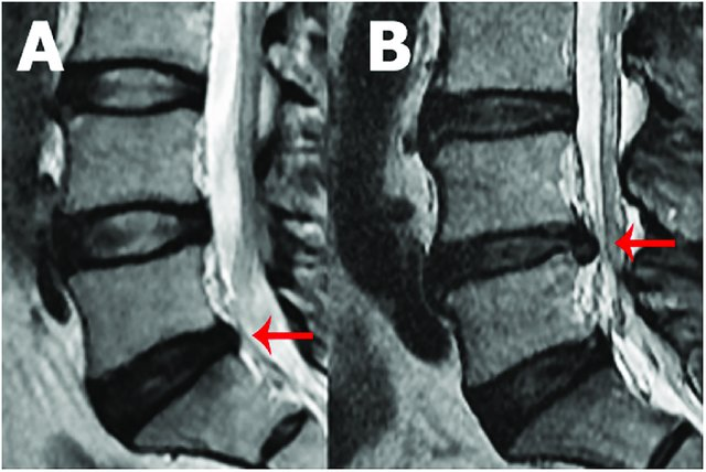 Sagittal-MRI-of-the-lumbar-spine-showing-disc-protrusion-at-L5-S1-A-and-disc-extrusion_W640.jpg