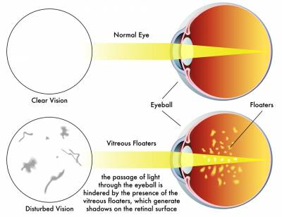 b2ap3_thumbnail_Exeter-eye-vitreous-floaters-vs-normal-eye-diagram.jpg